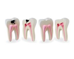 عيادة إصلاح الأسنان