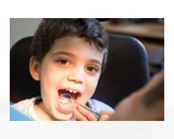 عيادة طب أسنان الأطفال
