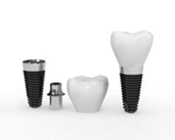 عيادة زراعة الأسنان و التركيبات
